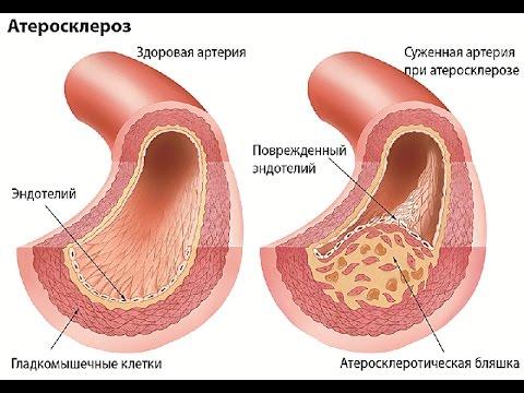 Ярина при гипертонии