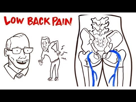 Low back Pain over view