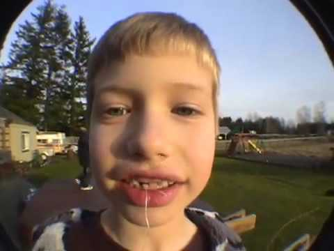 How To: Pull Out A Tooth With A Rocket