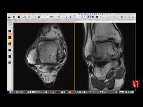 Interpretacja rezonansu magnetycznego stawu skokowego - RM kostki