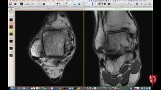 Systematic Interpretation Of Ankle MRI: How I Do It