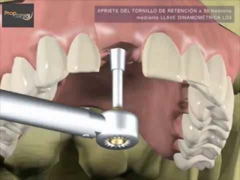 ¿Como se hace la prótesis sobre implantes dentales?
