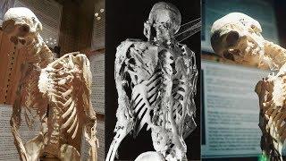 Что такое синдром каменного человека | Перевод DeeAFilm