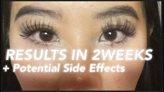 BABE LASH SERUM REVIEW 2020| Grow Eyelashes Fast | Fix Straight Asian Eyelashes | 2 Week Results