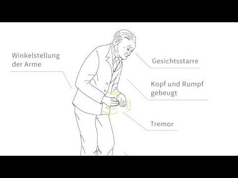 Die Thrombophlebitis wenosnogo des Sinus