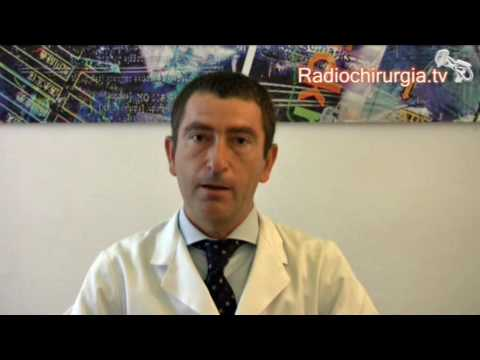 Cromogranina A e il cancro alla prostata