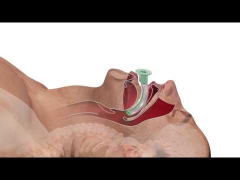 Als heilen Beginn Hypertonie