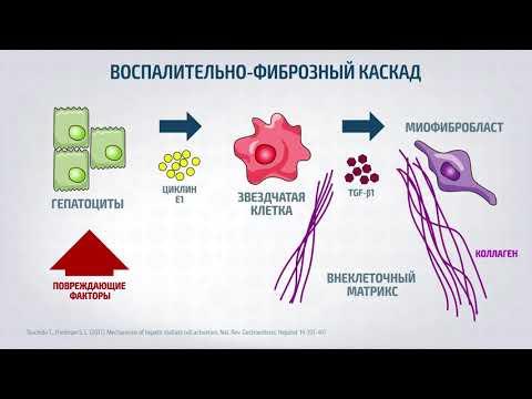 Лечение фиброза и цирроза печени препаратом БИИРИН