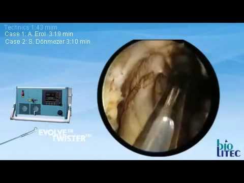 Θεραπεία Καλοήθους Υπερπλασίας Προστάτη με laser Ceralas HPD 980®