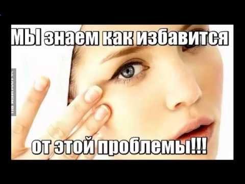 Синусит и отеки глаз