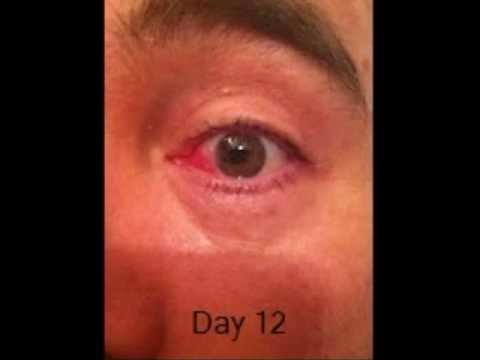 Examinarea ochilor după picătură