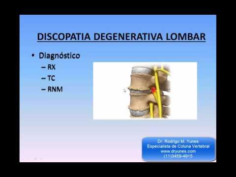 Brace semirigida sullarticolazione del ginocchio