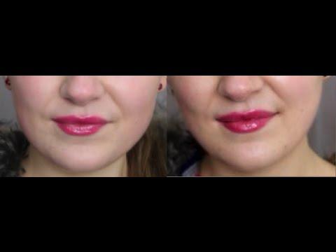 Botox sa paligid ng mga review matang litrato