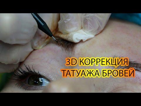 Разное зрение в обоих глазах