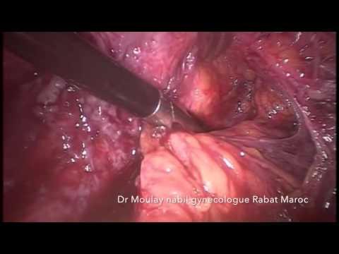 Laparoscopy for Severe Recto-vaginal Endometriosis