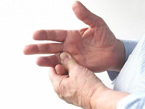 Video Jammed Finger Treatment