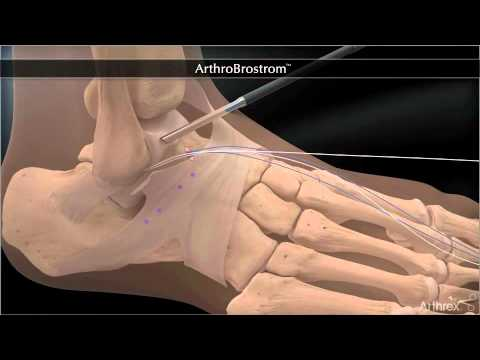 Rehabilitation von Osteochondrose