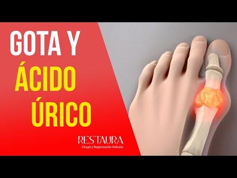 La cirugía del quiste de la rodilla