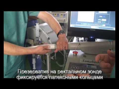 Самая лучшая операция на аденому простаты
