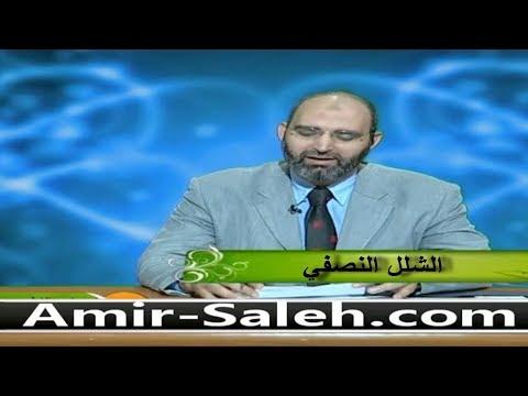 الشلل النصفي | الدكتور أمير صالح | الطب الآمن