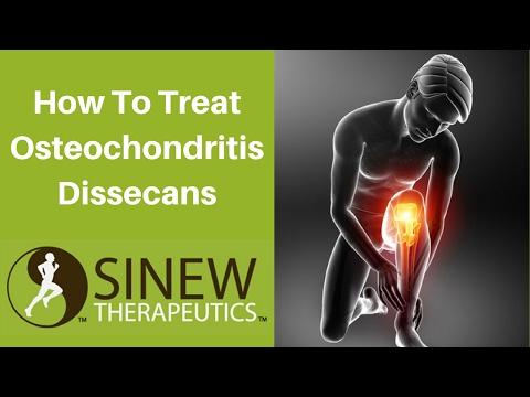 Osteochondrosis molto diffuso di una spina dorsale quello che è questo