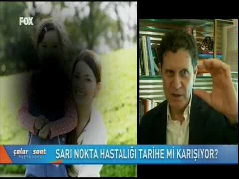 Sarı Nokta Hastalığı Tedavisi - Fox TV