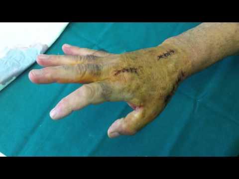 Malattie articolari e loro trattamento.