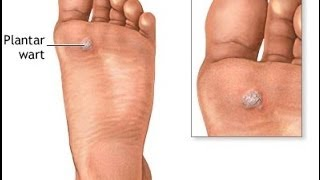 How to Get Rid of a Plantar Wart - Treatment for Plantar Warts