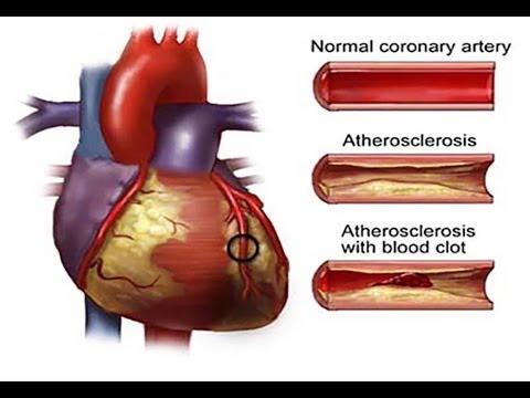 علاج شرايين القلب المسدودة من الطبيعة
