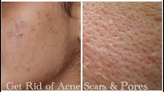 How to remove Acne Scars & Pores Day and Night Remedy 