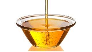 acido urico en suero minimo aumento del acido urico dieta para bajar el colesterol trigliceridos y acido urico