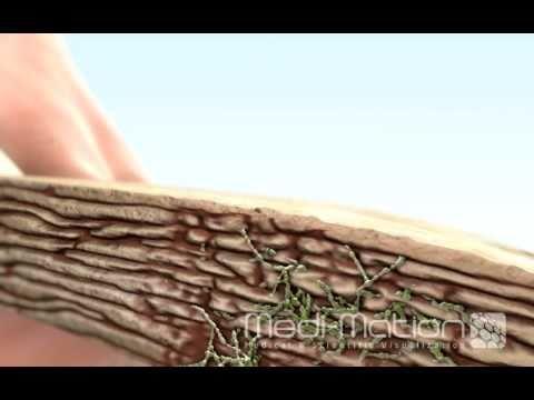Tinea toenail paggamot