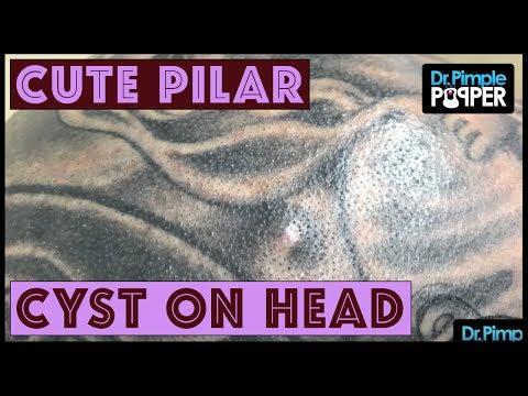 Pilar Cyst On Tattooed Head