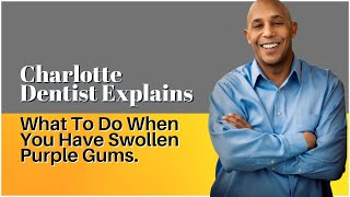 Inflamed Gums?  What to do when you have swollen purple gums.