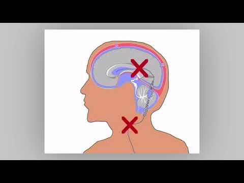 Η διαφορά του αρτηριακού και φλεβικού πίεσης
