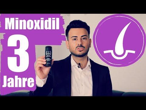 Haarausfall was hilft wirklich | 3 Jahre Minoxidil Erfahrung - Haarwuchsmittel