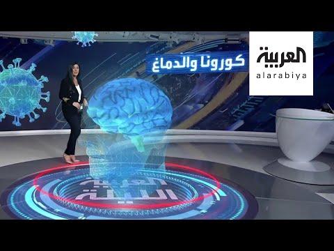 العرب اليوم - شاهد: موجة محتملة من إصابات بتلف دماغي بسبب
