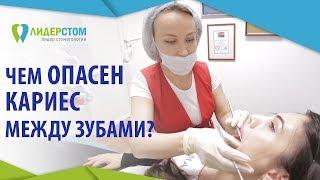 Лечение кариеса между зубами. 👄 Современные технологии при лечении кариеса между зубами. 12+