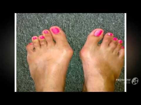 Как остановить рост косточки на пальце ноги