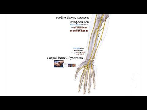 Zespół cieśni nadgarstka (ft. dr Mackinnon)