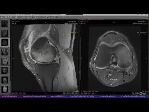 Articulație dureroasă a genunchiului la exterior