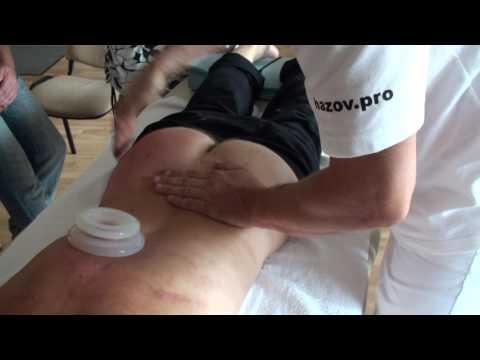 Tratamentul prostatita în Thailanda