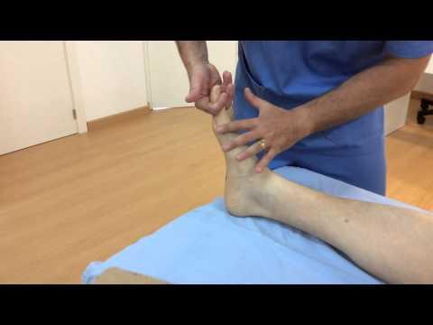 Deformazioni statiche di presentazione di piede