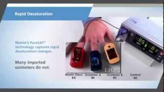 Nonin Onyx Vantage Pulse Oximeter video
