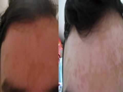 Zwetotip mit den Sommersprossen und mit dem aschgrauen Haar