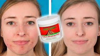 People Try The Aztec Healing Clay Face Mask For Their Acne