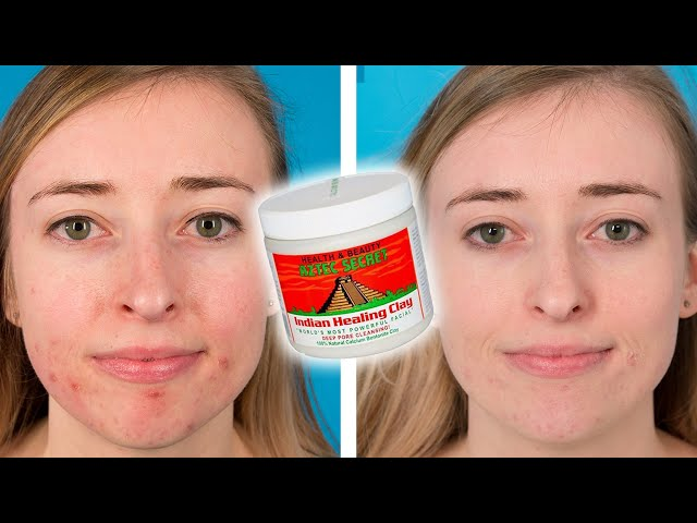 We tried the aztec healing clay mask and it really made a difference watch these people try the viral aztec healing clay face mask solutioingenieria