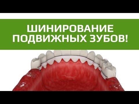 Шинирование зубов. Стекловолоконное шинирование зубов.
