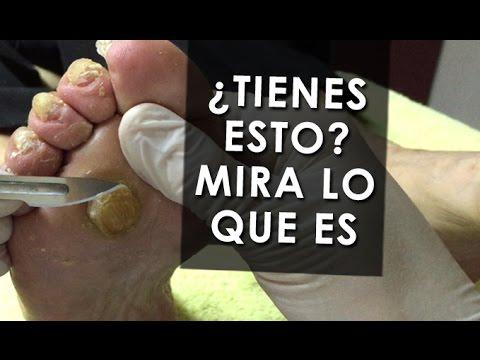 Sacar el hongo de las uñas por la blancura