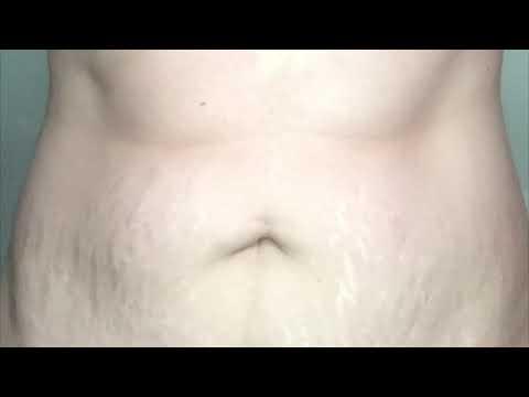 Perte de poids après kyleena